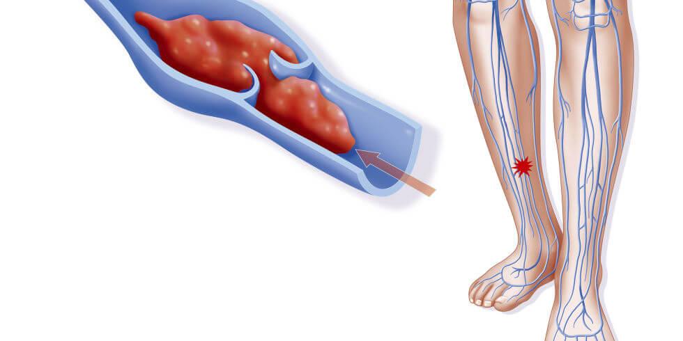 причины развития тромбоза