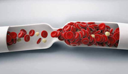Тромбоз вен: симптомы,  диагностика, профилактика и лечение