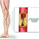 причины артериального тромбоза ног