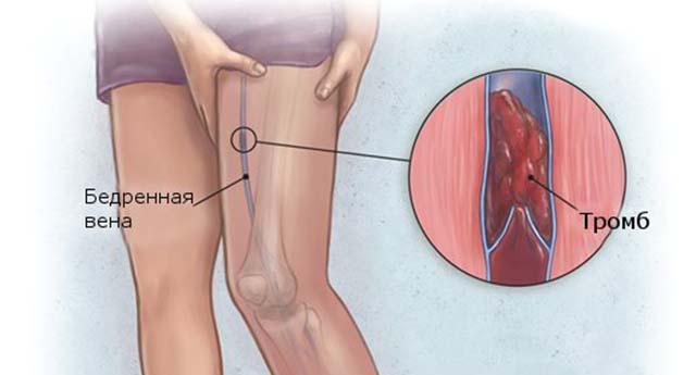 Признаки тромба в ноге симптомы лечение