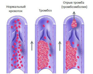 Образование тромбоза глубоких вен