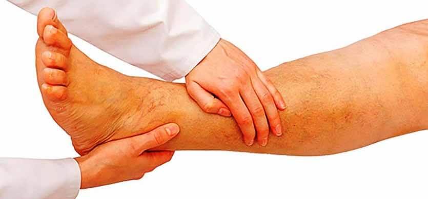 симптомы тгв нижних конечностей