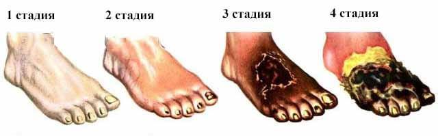 степени артериального тромбоза нижних конечностей