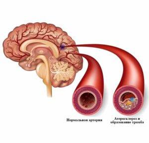 тромбоз артерий головного мозга