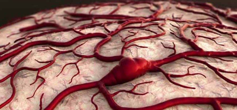 Тромбоз сосудов головного мозга: венозный, артериальный и синус тромбоз