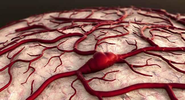 Сигмовидный синус головного мозга
