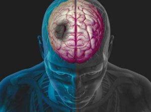 профилактика тромбоза сосудов головного мозга