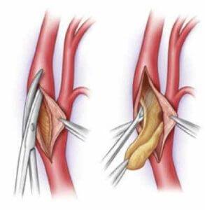 лечение артериального тромбоза