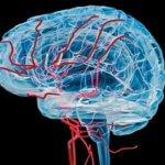 причины тромбоза сосудов головного мозга