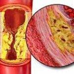 Образование тромба из за атеросклерозова