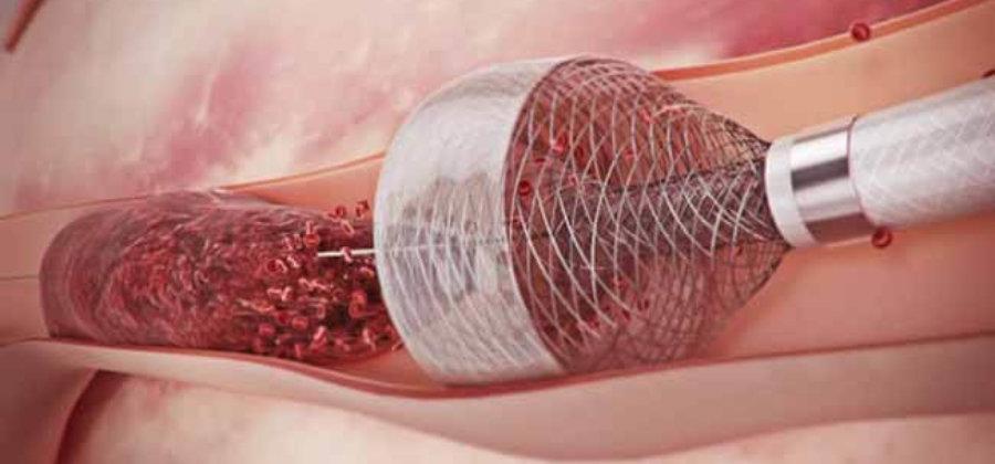 Флотирующий тромб: причины, симптомы и лечение