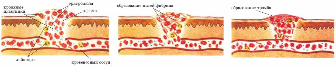 Тромбы как распознать симптомы и лечение