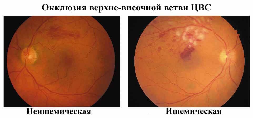 окклюзия цвс глаза