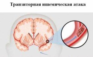 транзиторные ишемические атаки