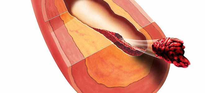 Тромбоз брюшной аорты лечение