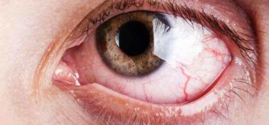 Тромбоз вен и артерий сетчатки глаза