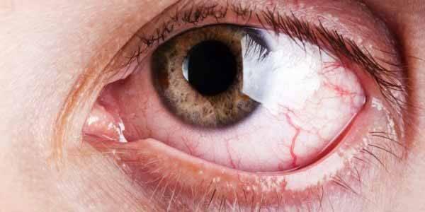 Что такое тромбоз центральной вены сетчатки чем опасен