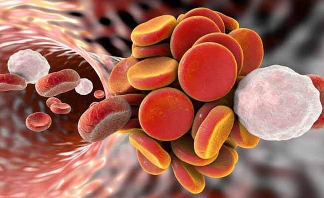 Симптомы тромба в ноге: первые признаки тромбоза