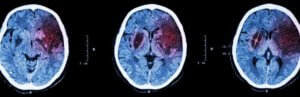 диагностика атеросклероза  головы