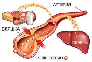 причины образования холестериновых бляшек в сосудах головы