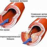 атеросклероз народными методами