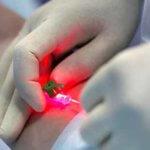 методы лечения во флебологии