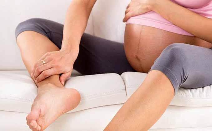 Тромбофлебит при беременности лечение