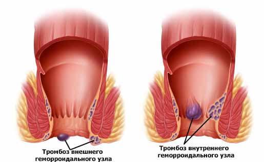 внутренний и внешний тромбоз геморроидального узла