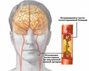 атеросклероз внутренней сонной артерии