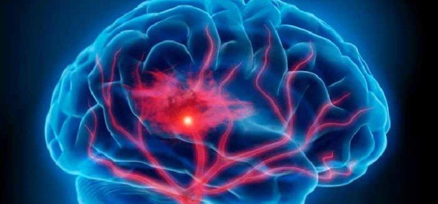 Церебральный атеросклероз — симптомы и лечение заболевания