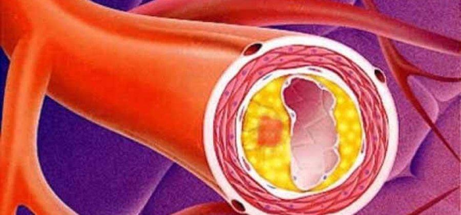 Генерализованный атеросклероз что это? Причины и симптомы