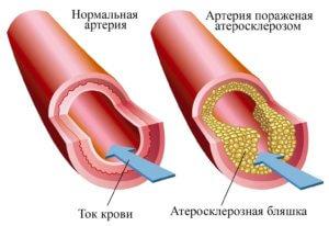 суть заболевания брюшной аорты