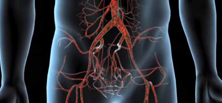 Атеросклероз брюшной аорты: симптомы и лечение