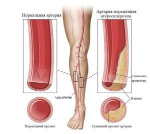 причины атеросклероза ног