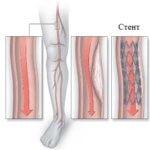 стентирование артерий нижних конечностей