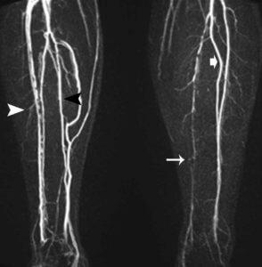 диагностика артерий ног