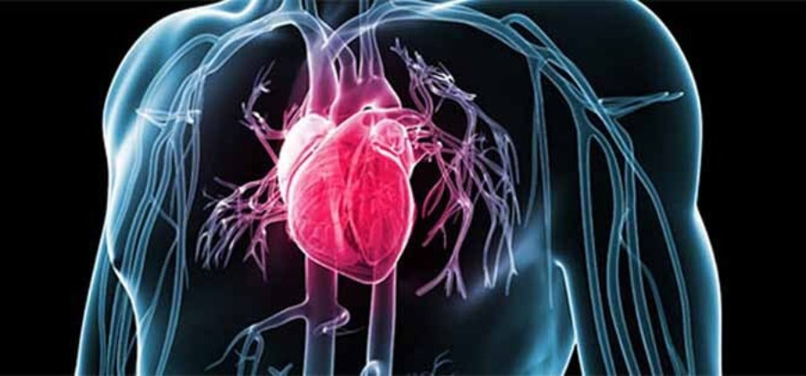 Атеросклероз коронарных артерий