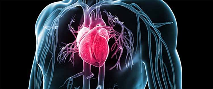 Атеросклероз коронарных артерий - что это, симптомы и лечение