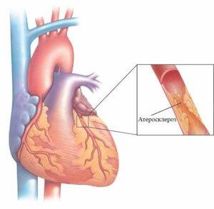 атеросклероз коронарных артерий сердца