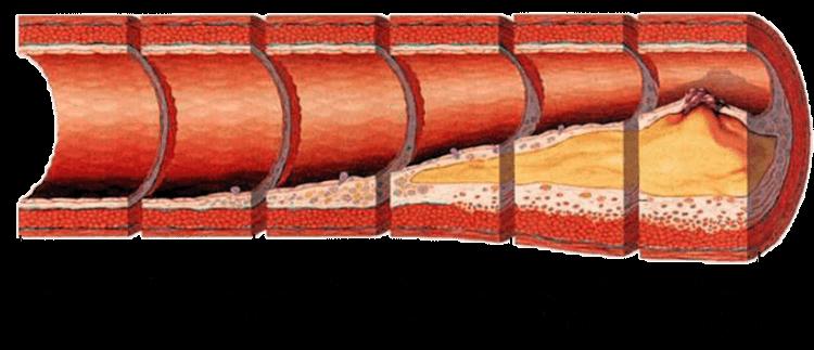 механизм развития атеросклероза