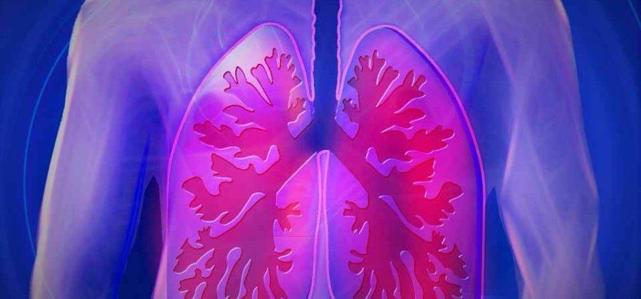 Тромбоэмболия легочной артерии (ТЭЛА): симптомы, лечение и диагностика