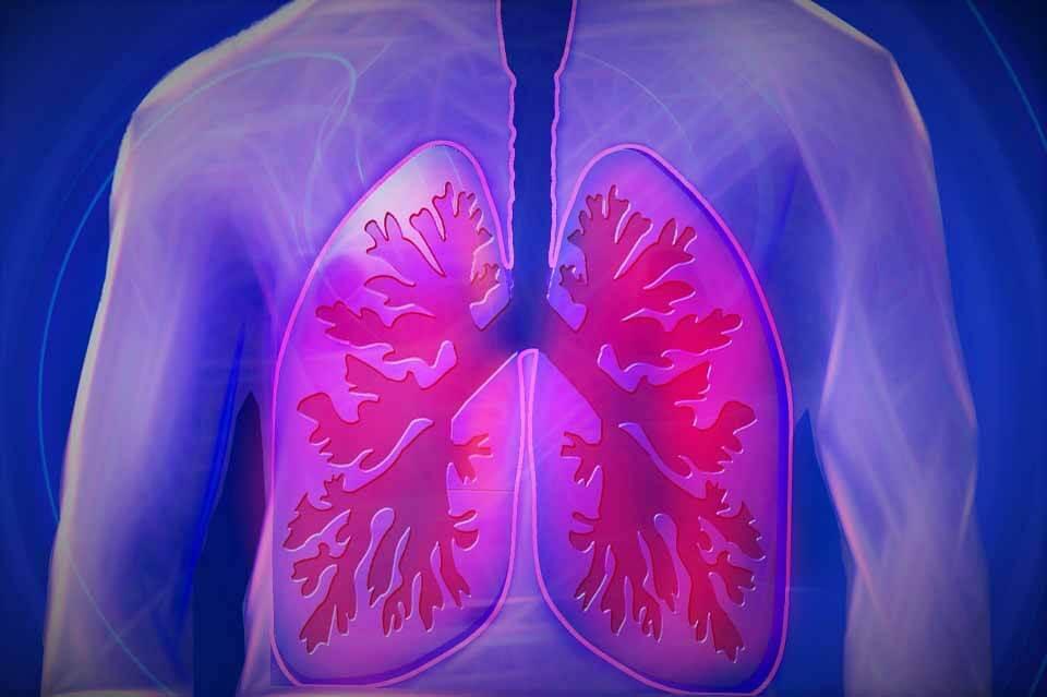 Лечение тромбоэмболии легочной артерии