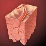 Что представляет собой мультифокальный атеросклероз