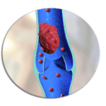 осложнения варикоза ног