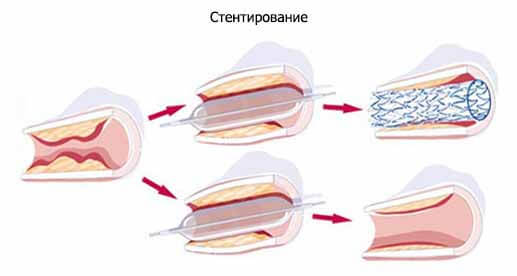 стентирование артерий бцc