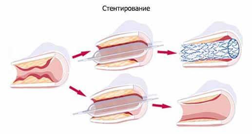 Операция при атеросклерозе бца thumbnail