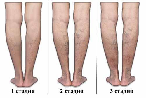 стадии варикозного расширения вен ног