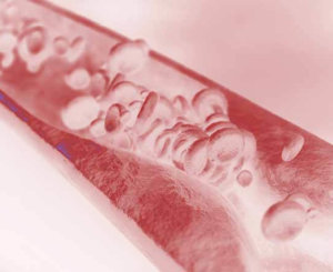 Стенозирующий атеросклероз магистральных артерий