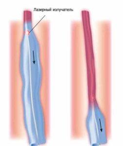 удаление варикозных вен лазером