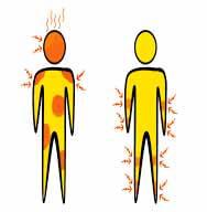 симптомы различных форм флебита